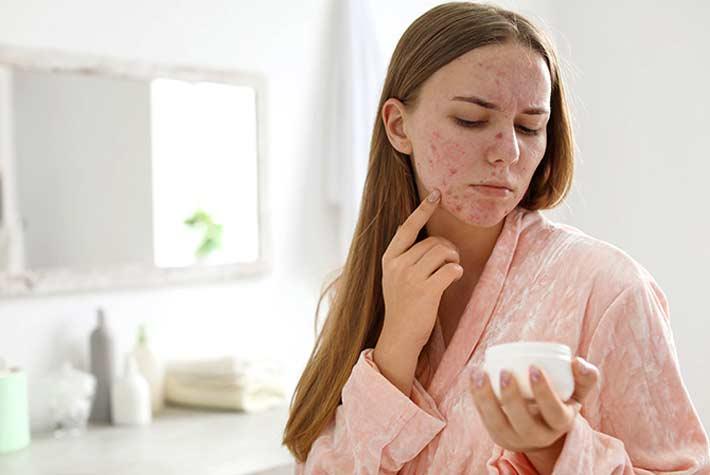 Skin Purging (Spurgo Della Pelle): Cos'è E Come Attenuarlo