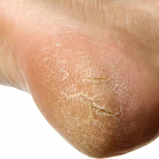 Eczema che sta infettivo