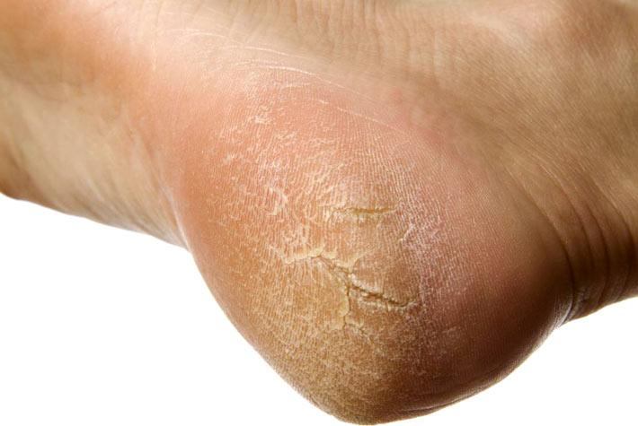 Eczema su trattamento di mani allatto di nutrizione