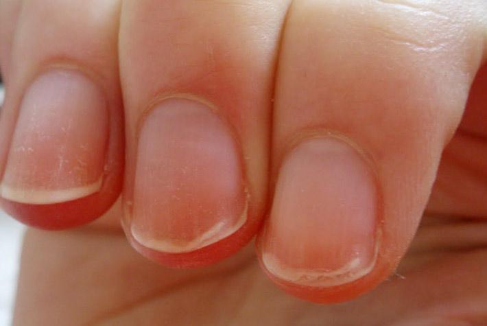 Medicine mediche da un fungo su unghie di gambe