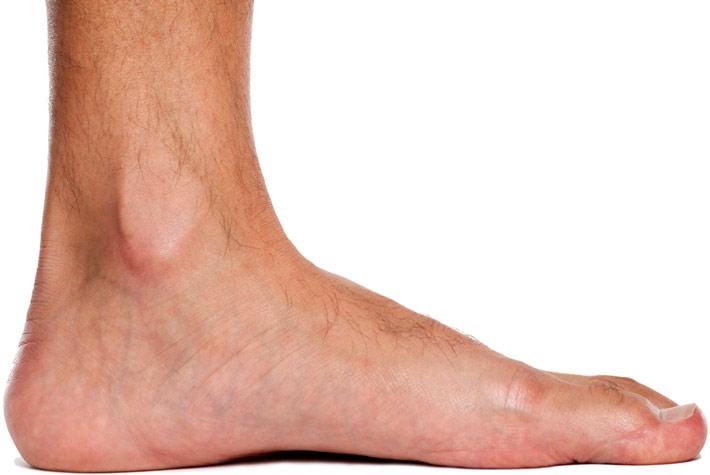 esercizi per migliorare i piedi piatti pes planus