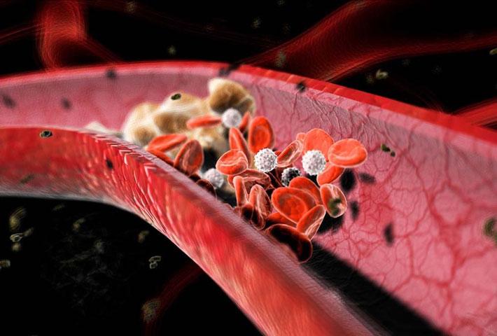 Alimenti per abbassare il colesterolo i cibi permessi e for Colesterolo alto cibi da evitare