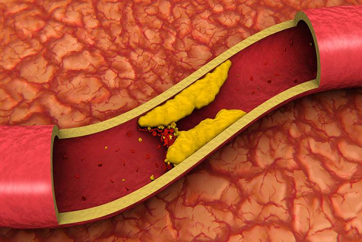 Colesterolo cattivo ldl come prevenirlo e abbassarlo for Colesterolo alto cibi da evitare