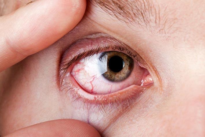 emorragia retinica  cause  sintomi  cura  prevenzione
