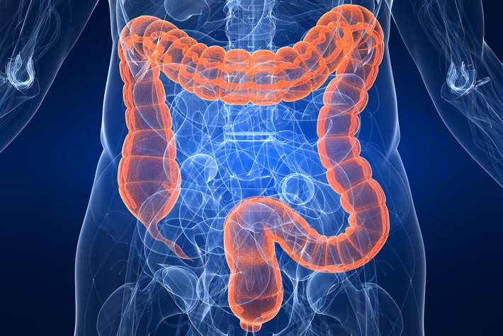Colon Disteso (Megacolon) Sintomi