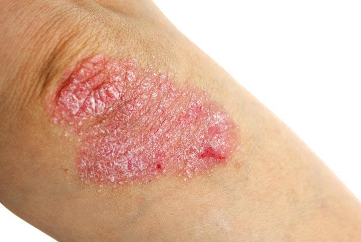 Cura di eczema di spazzole a bambini