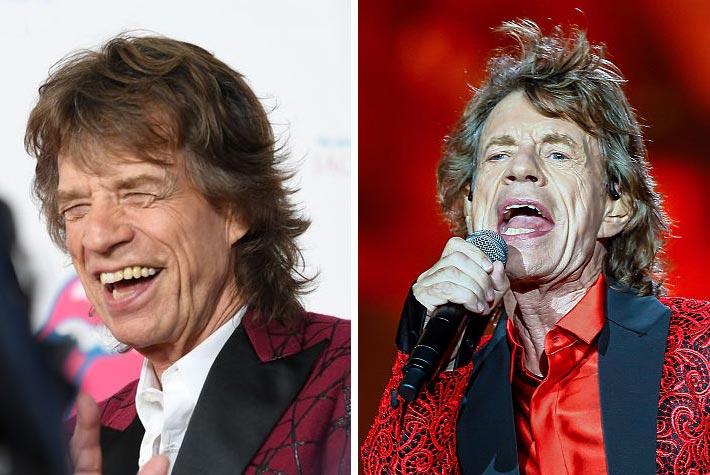 tagli-capelli-lunghi-rock-uomo-stempiato-mick-jagger